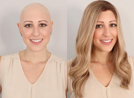 Follea Grippers, Best Wigs for Alopecians!