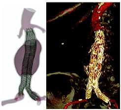 Abdominal aortic aneurysm.png