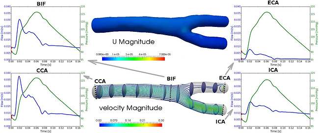 fluid-structure interaction mouse caroti