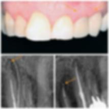 Endodontia2.png