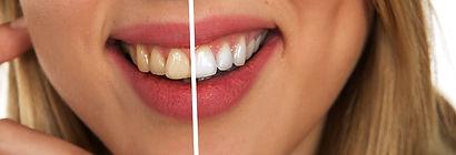 Branqueamento dentário antes e depois