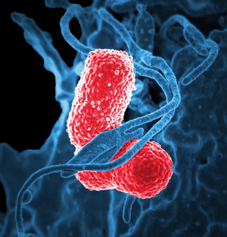 Researchers find new way to kill world's worst superbugs: now out in Nature Microbiology!