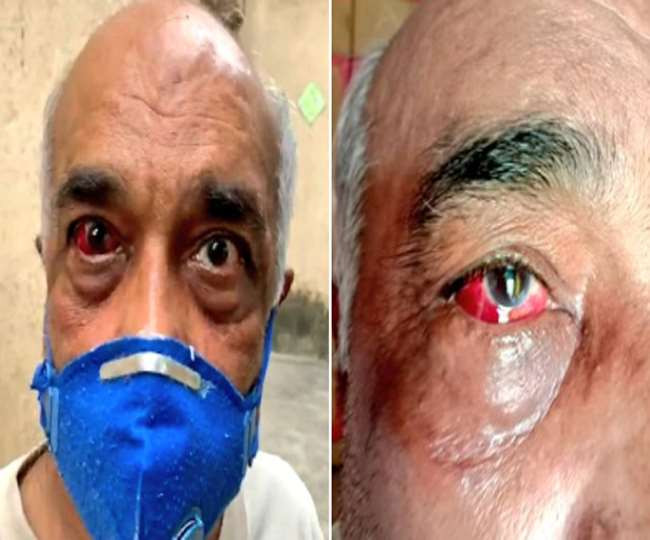 Ex-Navy officer beaten for forwarding cartoon on CM Uddhav