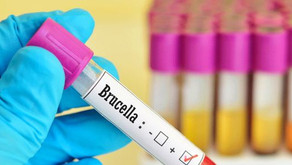 Brucellosis, a new pandemic crisis by China?