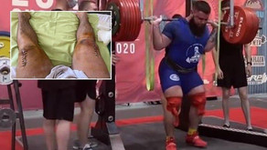 A powerlifter shares pics of scars who broke knees while attempting to squat 400kg