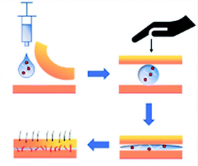Pressure-driven spreadable deferoxamine-laden hydrogels for vascularized skin flaps