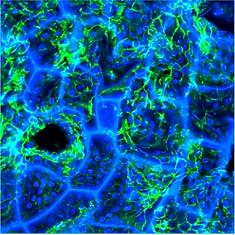 3D bioengineered tissue model of the large intestine to study inflammatory bowel disease