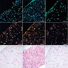 Sustained Delivery of SB-431542, a Type I Transforming Growth Factor Beta-1 Receptor Inhibitor, to Prevent Arthrofibrosis