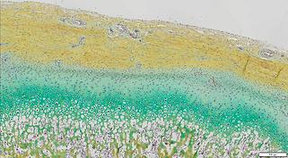 Tissue engineered autologous cartilage-bone grafts for temporomandibular joint regeneration