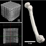 3D Printed Silk Implants and Scaffolds