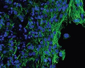 Human Tissue-Engineered Model of Myocardial Ischemia-Reperfusion Injury