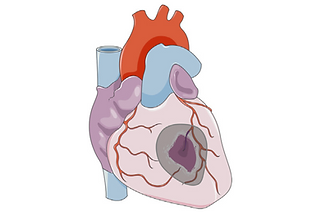 Tissue engineering of the heart: An evolving paradigm