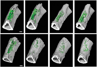 Engineered Vascularized Flaps, Composed of Polymeric Soft Tissue and Live Bone, Repair Complex Tibial Defects