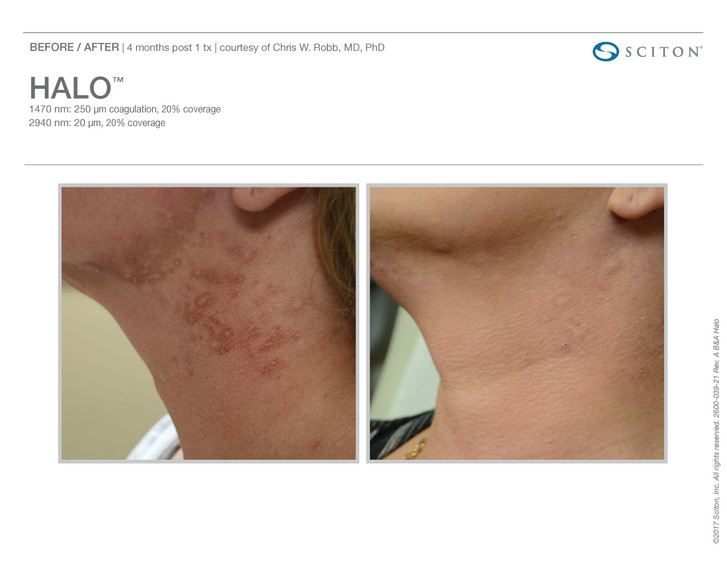 Scars 1.jpg