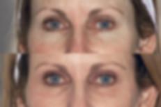 Eyelids 1.jpeg
