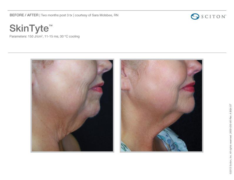 HR SkinTyte 4.jpg