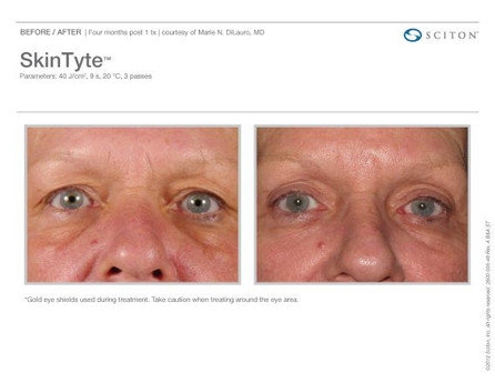 Eyelids 3.jpg