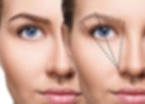 ooglidcorrectie 1.jpg