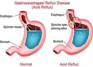 acid reflux.jpg