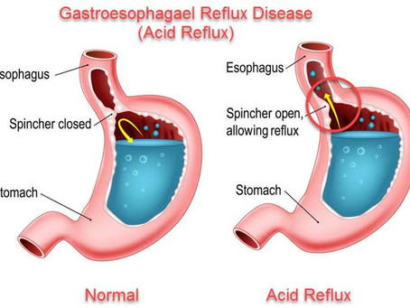 Acid Reflux & Semaglutide