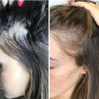 PLATELET RICH PLASMA (PRP) FOR HAIR GROWTH