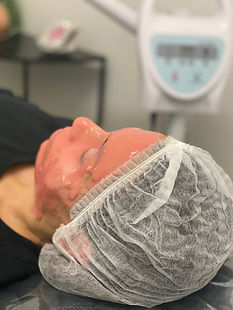 Best HydroJelly Mask Services in Sydney | Lavo Laser