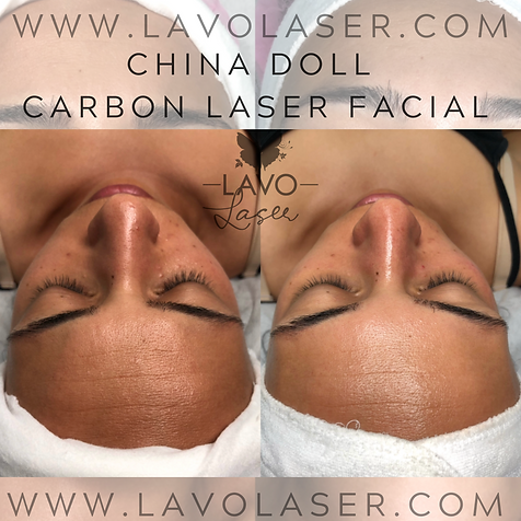 CHINA DOLL CARBON LASER BEFORE & AFTER.P