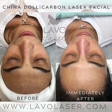 CHINA DOLL CARBON LASER BEFORE & AFTER 3