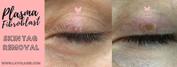 Plasma Fibroblast Results   Lavo Laser Sydney Skin Care Clinic