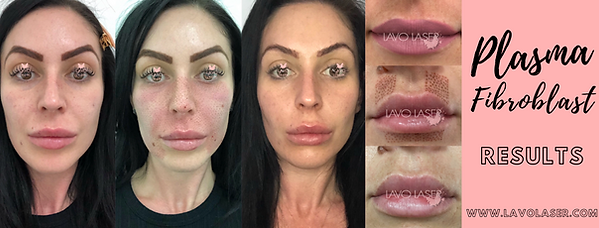 Plasma Fibroblast Results | Lavo Laser Sydney Skin Care Clinic