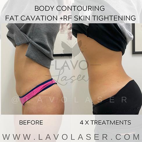 Fat Cav + Skin Tightening 2.png