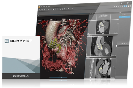 D2P DICOM to Print Softwae