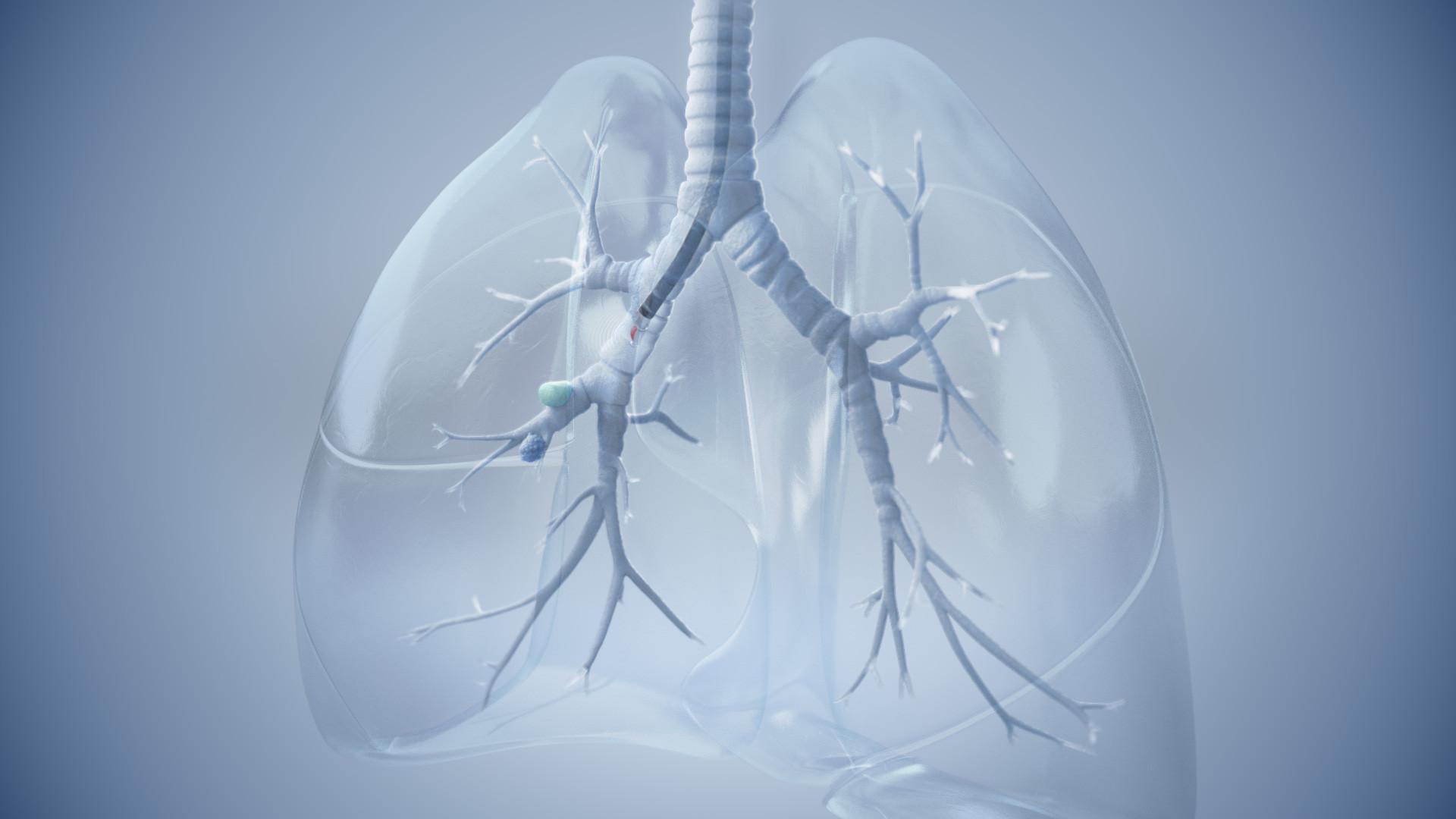 OLYMPUS Pulmonary Lesion