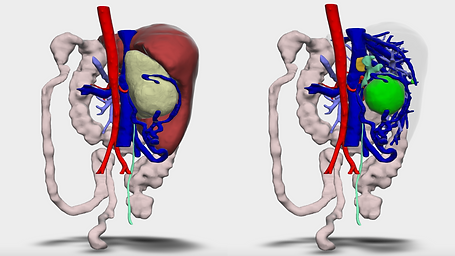 MEDICAL-NOTE   REAL 3D Digital reconstructions from CT/MRI scans