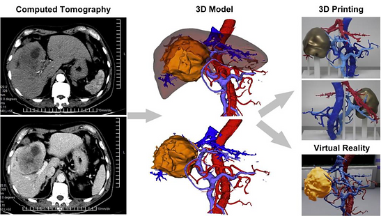 MEDICAL-NOTE   REAL 3D Digital 3D reconstructions and 3D prints
