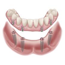 impaltátum fogsor