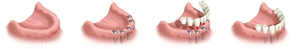 straumann Implantátum körhíd