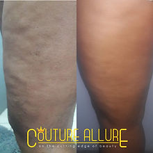 couture allure jamaica cellulite.jpg