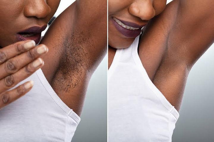Laser-Hair-Removal-For-All-Skin-Tones-Af