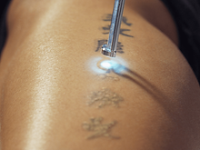 tattoo removal couture allure kingston j