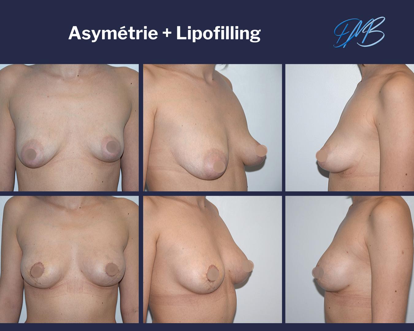 Augmentation mammaire par injection de graisse 4