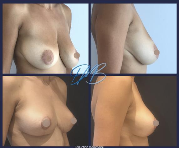réduction mammaire 5.png
