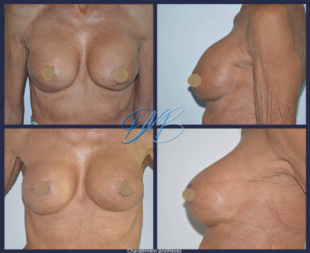 Coque stade 3 + malposition :Changement de prothèse mammaire.
