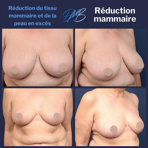 réduction mammaire 9