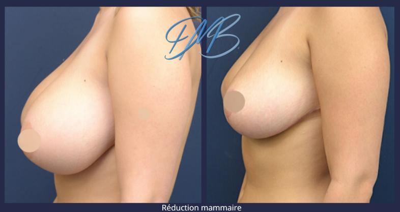 réduction mammaire 3.png