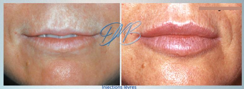 injections lèvres acide.png