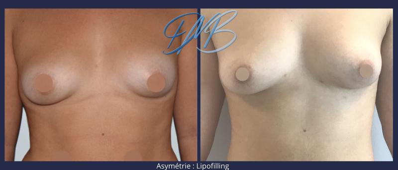 Asymétrie mammaire, : symétrisation par lipofilling