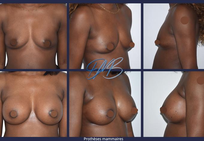 Prothèses mammaires nice benatar.png