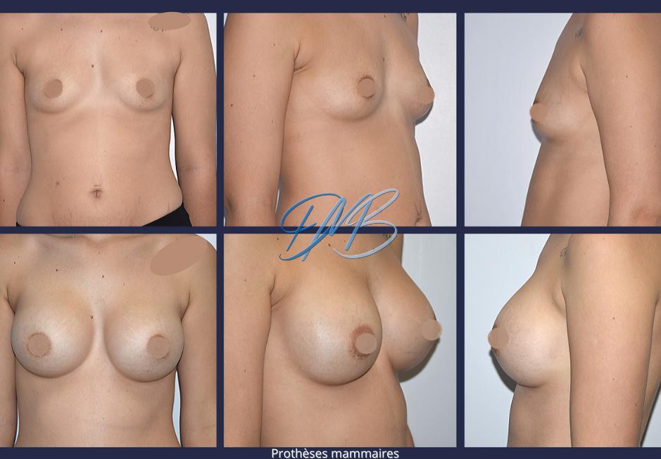 Prothèses mammaire docteur marc benatar.