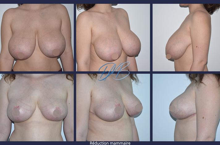 réduction mammaire 4.png